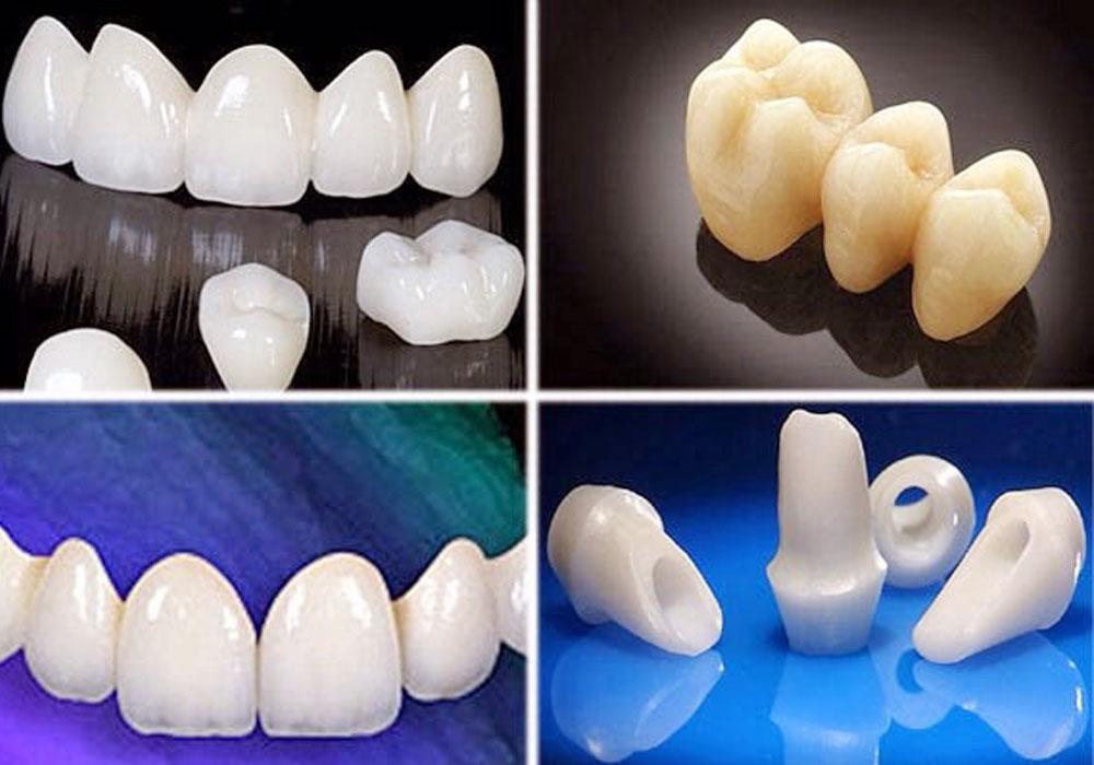 Bọc sứ răng thưa - Phương pháp phục HOÀN HẢO nhất! 2